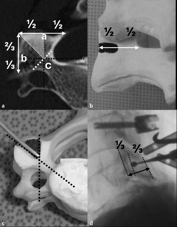 Cutting burr (3 mm). The entry shape is a rectangle in the coronal plane (a) and a right-angled triangle in the axial plane (b). The apex of the triangle is the virtual pedicle inlet and the oblique s
