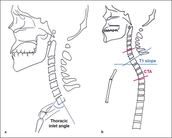 Schematic drawing of radiographic measurements of (a) thoracic inlet angle and (b) T1 slope and cervicothoracic angle (CTA).