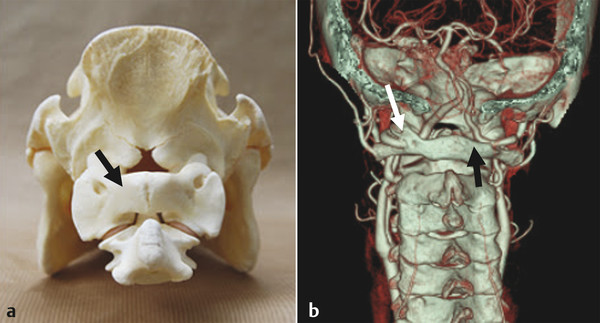 (a) Posterior view of dried quadruped's specimen shows the craniovertebral junction and broad C1 posterior arch (arrow). (b) 3D reconstruction CTA shows normal C1 arch (black arrow) on the right side