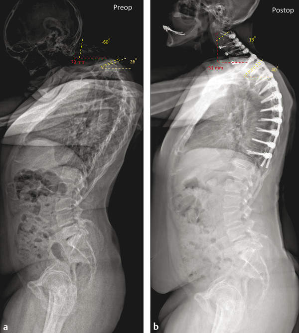 A 64-year-old male who presented with a chin-on-chest deformity. His cervical deformity started in 2 years earlier. He denies any trouble swallowing and has minimal neck pain. He struggles to ambulate