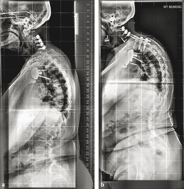 A 76-year-old female who underwent a C3 to C6 posterior cervical decompression and fusion for myelopathy had ongoing neck pain and adjacent breakdown below. She had significant baseline deformity with