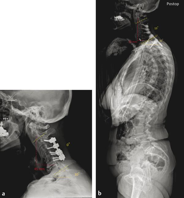 A 71-year-old female presented with axial neck pain post a C3–C6 posterior decompression and fusion with instrumentation for cervical myelopathy. She had been experiencing pain in her mid-neck region